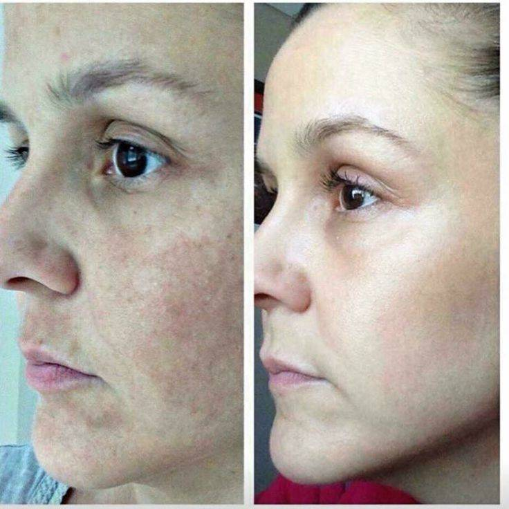 Led Skin Tightening | The gift direct